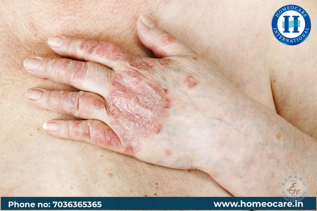 Homeopathy Treatment For Psoriasis In Nellore