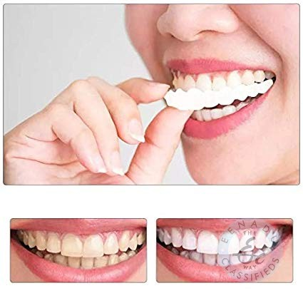 Best Dental Clinic In Chandanagar Hyderabad