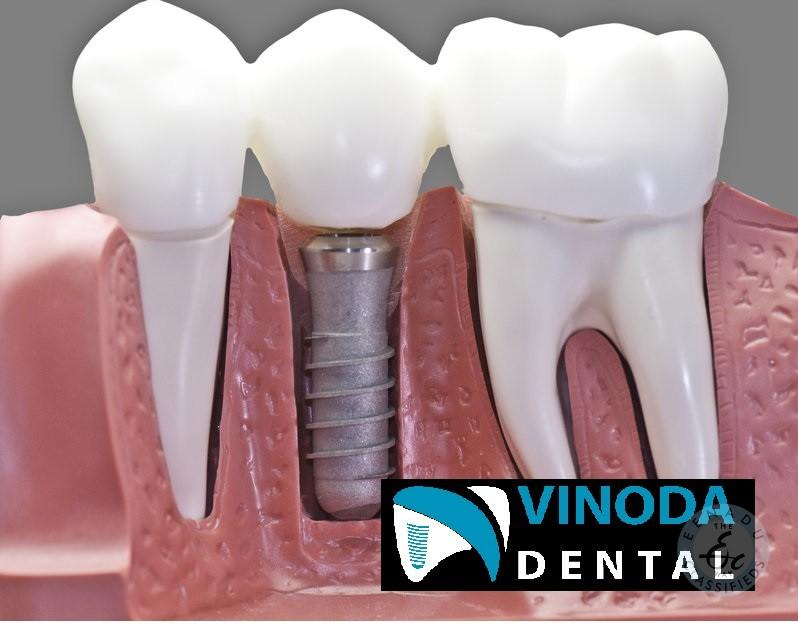 Best Dental Hospital In Warangal