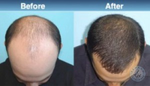 hair loss treatment center in hyderabad