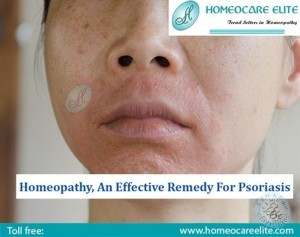 Homeopathy Treatment For Psoriasis In Kukatpally Hyderabad