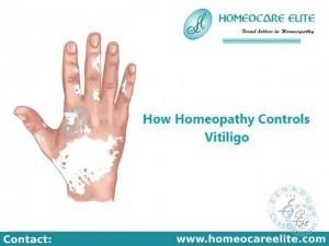 Homeopathy Treatment For Vitiligo In Dilsukhnagar